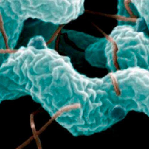 XVII Curso de Microbiología Clínica