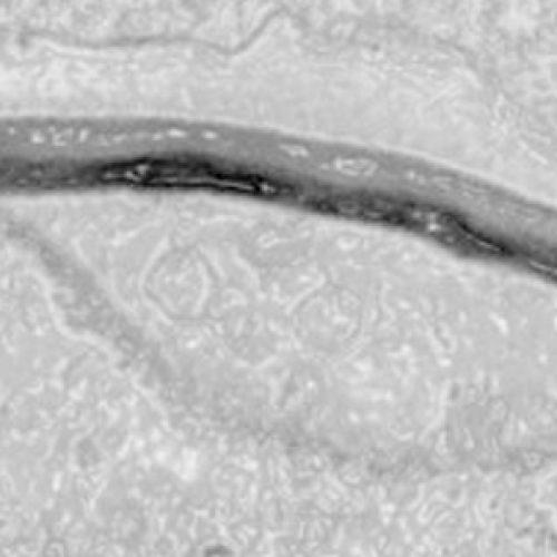 Investigadores estudian la complejidad genética de los Pandoravirus (Pandoraviridae)