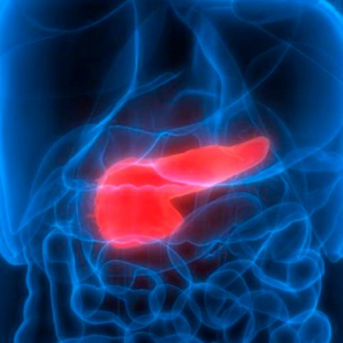 They manage for the first time the disappearance of cancer of the pancreas in mice