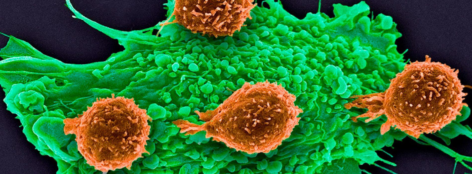La técnica más avanzada de edición genética CRISPR pasa el ensayo clínico en tres pacientes de cáncer