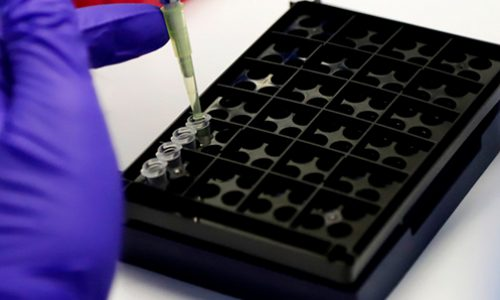 New diagnostic technology would take about 20% less than PCR and would be 10 times cheaper