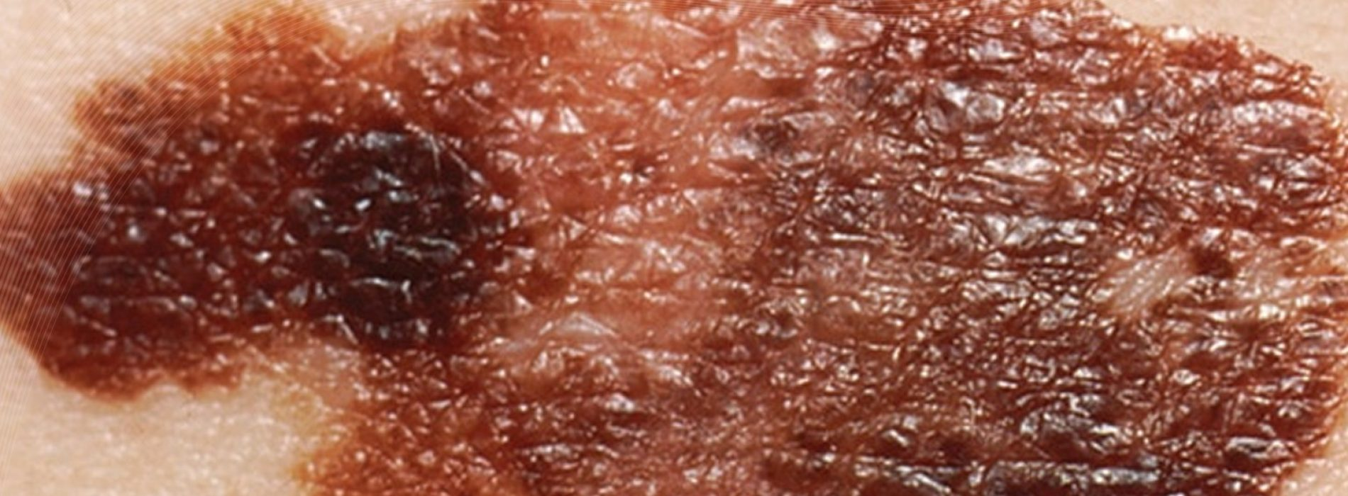 Trials show that virus-based skin cancer therapy could be a good alternative for non-operable cases