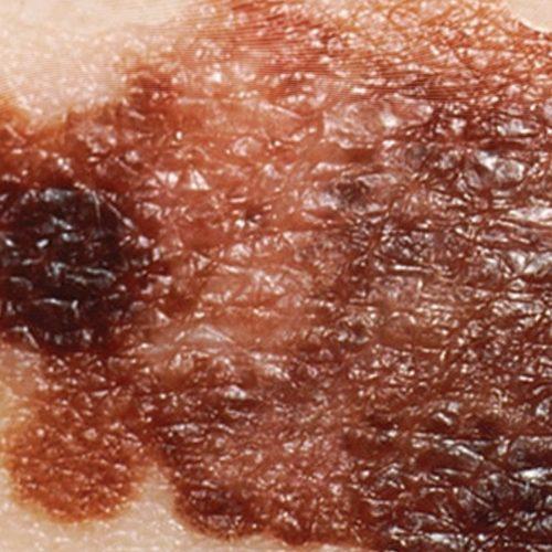 Ensayos muestran que terapia contra cáncer de piel en base a virus podría ser una buena alternativa para casos no operables